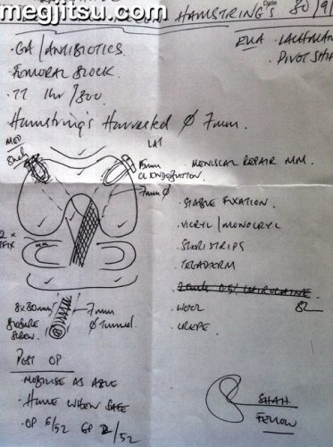 ACL reconstruction notes